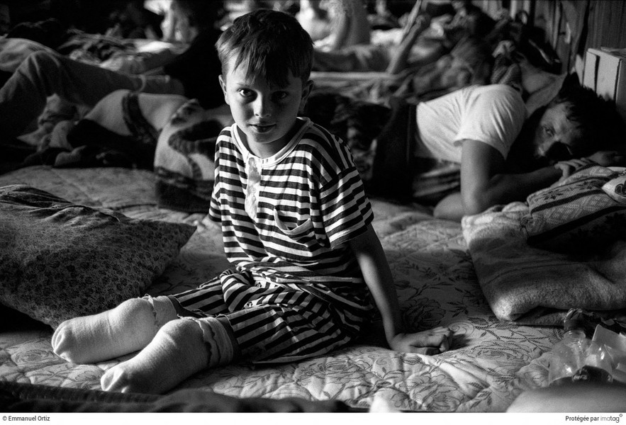© Emmanuel Ortiz - BALKANS EN GUERRE - 1995 ; Bosnia Herzegovina ; Bihac : A young boy who lost both legs to shelling recovers in a refugee camp near Bihac for supporters of the rebe… - protected by IMATAG