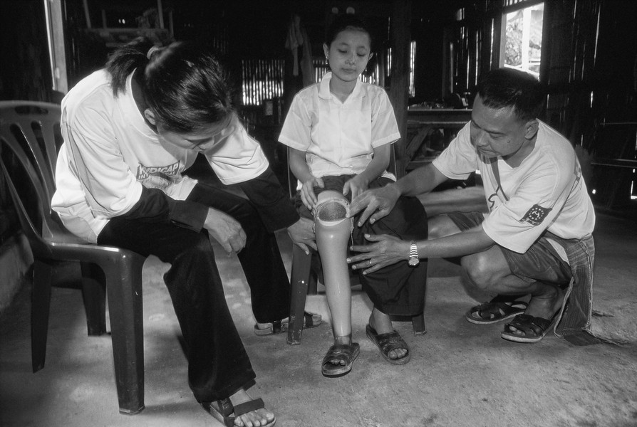 © Jean Pierre Porcher - A02_1-Editar.jpg - THAILAND (Mae-Sot Burma border) 12/2000  Paw-Wah,old 14,little girl Karen disabled  by mine living to refugees Maela-Camp. Located 50-60 kilo... - protected by IMATAG