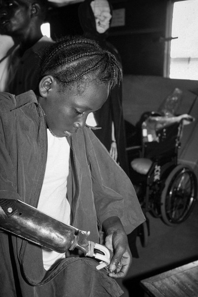 © Jean Pierre Porcher - A21_1-Editar.jpg - SIERRA-LEONE (Freetown) 05/2001   Young girl amputed at Muray camp. Handicap International  (No Governmental Organization), provides orthoped... - protected by IMATAG