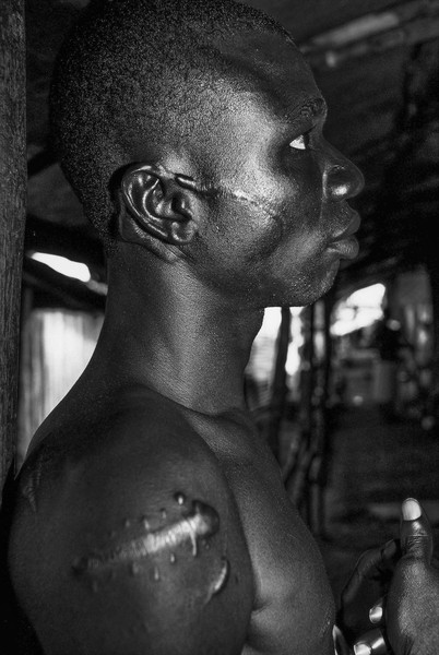 © Jean Pierre Porcher - A13_1-Editar.jpg - SIERRA-LEONE (Freetown) 05/2001 Mamadou 14 year old,amputed by rebels in refugees of Murray camp. The camp is supported by Médecins Sans Fron... - protected by IMATAG